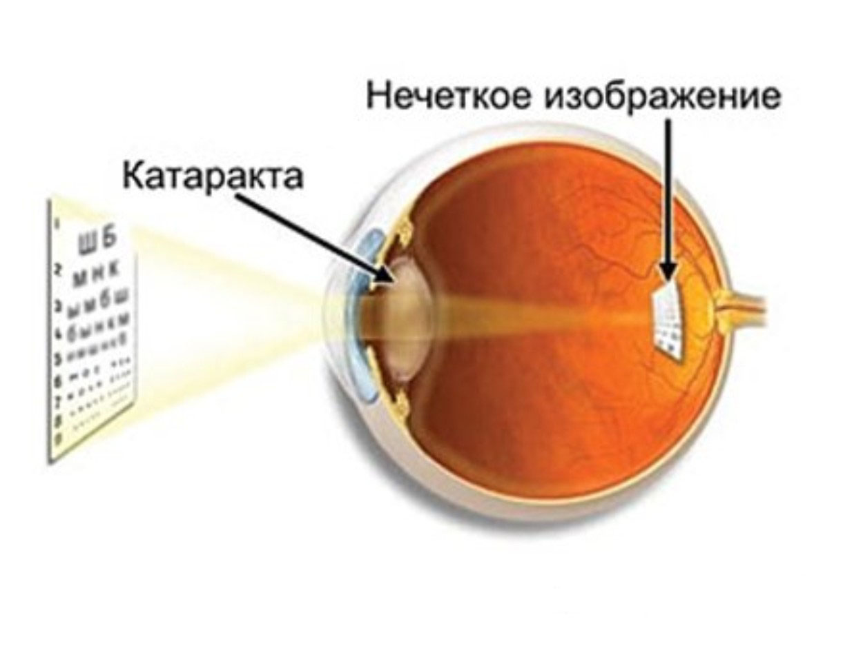Купить очки для зрения ростов-на-дону